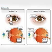 Benefits & Risks Of Cataract Surgery