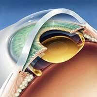 Lens Implant After Cataract Surgery